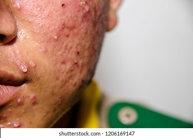 Asian boy 15 years old with acne and pus on face a lot : Front view