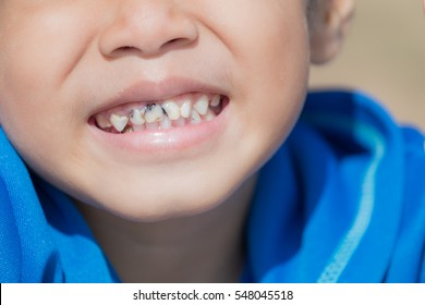 Asian boy cavities Caused a lot like eating candy