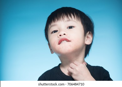 Asian boy got dairy or milk allergy, got red skin rash around his month, keep scratching, blue background