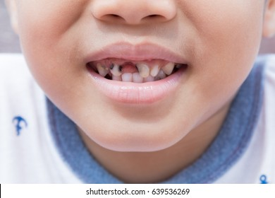 Asian boy remove tooth decay from the mouth