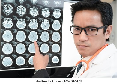 The Asian doctor point his finger to MRI film scan on the light board while turn his face toward to camera with serious face.