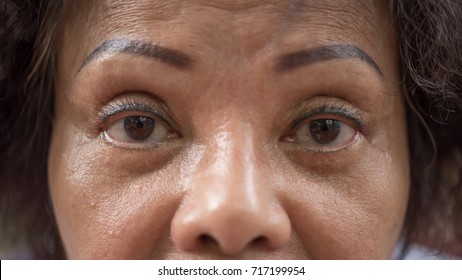 Asian elder women 60s with black hair and wrinkled on face show her eyes and eyebrow tattoo before cornea surgery