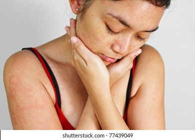 Asian ethnic adult female with allergic skin problem