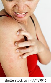 asian ethnic adult woman with allergy skin scratch itchy arm