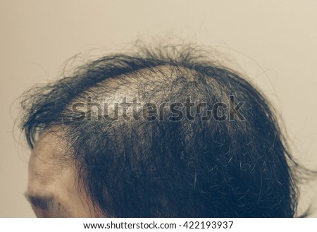 Asian female head with hair loss problem in vintage tone