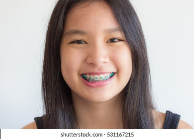 asian girl has braces ,asian girl is smiling with green braces