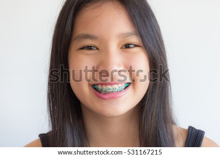 teen with Asian braces girls