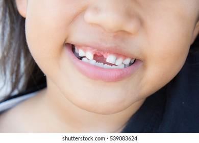 Asian girl smiling broken tooth