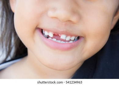 The Asian girl smiling broken tooth
