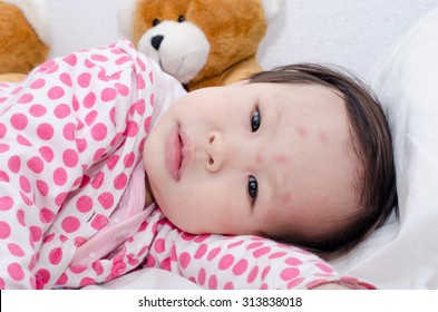 Asian girl's face with red spots due to insect bite