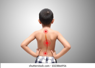 Резултат с изображение за scoliosis in kids