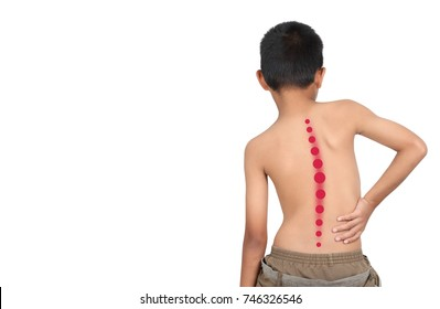 Asian kid with scoliosis, isolated on white background
