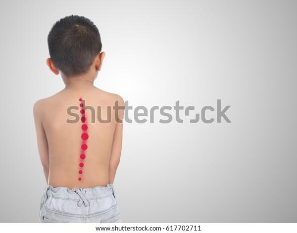 Азиатский ребенок со сколиозом, изолированный на белом фоне