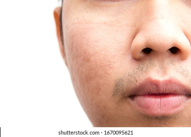 Asian male acne problem close up isolate background