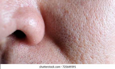 Asian male nose and cheek close up has skin problem, large pores, whitehead and blackhead pimple