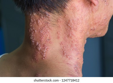 asian man has herpes zoster on his neck
