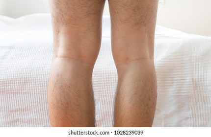 Asian man leg bandy-legged shape of the bow legs,Close up