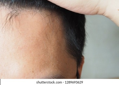 Asian man using his hand slicking his hair back after facing hair loss problem by taking medicine like zinc and biotin to  make his hair grow faster and thicker. Men health and medical concept.