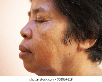 Asian old woman with skin problem, melasma