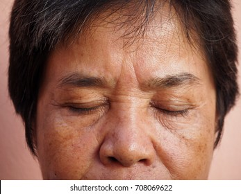 Asian old woman with skin problem, melasma, eye-bag