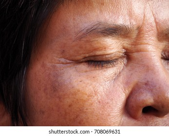 Asian old woman with skin problem, melasma, eye-bag close up