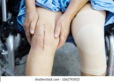 Asian senior or elderly old lady woman patient show her scars surgical total knee joint replacement Suture wound surgery arthroplasty on wheelchair nursing hospital ward : healthy strong medical.