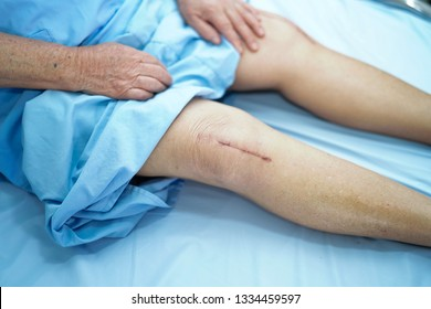 Asian senior or elderly old lady woman patient show her scars surgical total knee joint replacement Suture wound surgery arthroplasty on bed in nursing hospital ward : healthy strong medical concept.