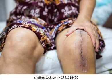 Asian senior or elderly old woman patient show her scars surgical total knee joint replacement Suture wound with tape. Recovery after surgery. healthy arthroplasty concept.