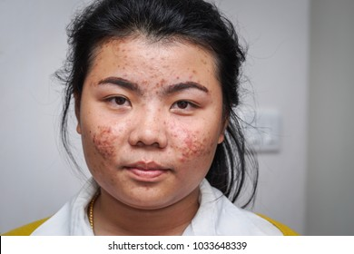 Asian woman with Acne on face.