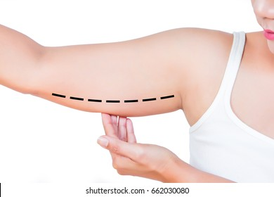 asian woman showing her fat upper arm