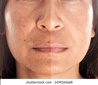 Asian woman with spotty skin with deep pores and blackhead and healed soft skin. com pair from before and after skin treatment.