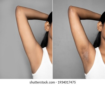 Asian woman with underarm before and after skin care cosmetology armpits epilation treatment concept. chicken skin problem, Fox Fordyce, black armpit in a woman.