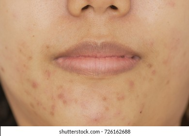 Asian Women Aged 25 29 Years, Light Brown Skin. Facial Inflammation Of The