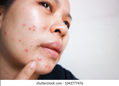 Asian women face acne lesions. Clogged pores Chemicals and dust cause acne. Good health requires acne on the face.