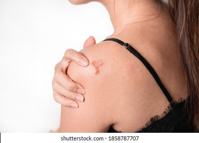 Asian women have keloid scar on shoulder and hand touch, on white background, dermatology and cosmetology concept.