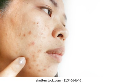 Asian women have scars and the dark spots on the face caused by acne.Due to skin creams and cosmetics containing steroids.Facial skin care,lack of good care.in soft focus.