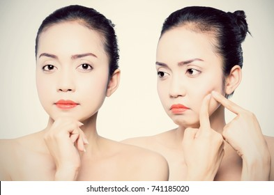 Asian young beautiful woman shows her face after using the product acne treatment,. Skincare concept.
