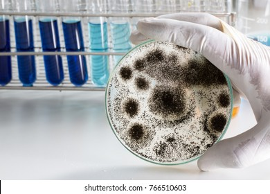 Aspergillus (mold) for Microbiology in Lab.