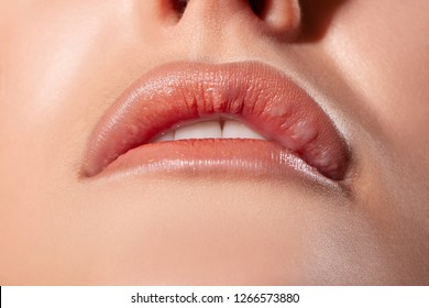asymmetry lips. seals and bumps in the lips after injections. Allergic reaction. silicone in lips. angioedema in a girl on the upper lip.- Image