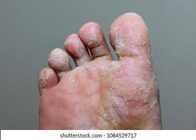 Athlete's foot - tinea pedis, fungal infection