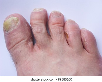 Athlete's foot/toenail mycosis