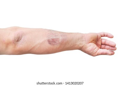 Atopic dermatitis (AD), also known as atopic eczema, is a type of skin inflammation (dermatitis) .