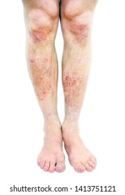 Atopic dermatitis (AD), also known as atopic eczema, is a type of inflammation of the skin (dermatitis) at foot.