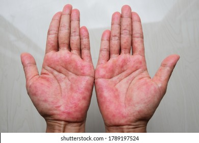 Atopic dermatitis (AD), also known as atopic eczema, is a type of inflammation of the skin (dermatitis) at Hands