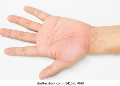 Atopic dermatitis (AD) on the hand, also known as atopic eczema or dyshidrotic eczema. Allergy on skin.