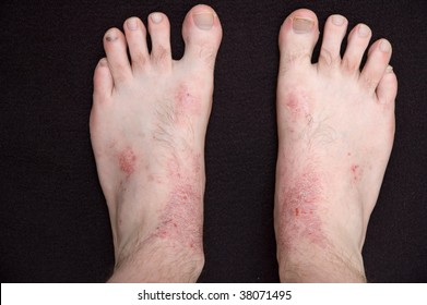 Atopic Eczema on the skin of a persons feet.