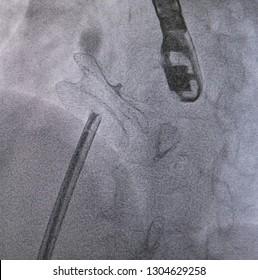 ATRIAL SEPTAL DEFECT(ASD) WAS CLOSED BY ASD CLOSURE PROCEDURE  IN CARDIAC CATHETERIZATION LABORATORY.