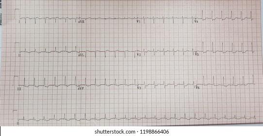 Atrial tachycardia with first degree av block. CS ostium AT.