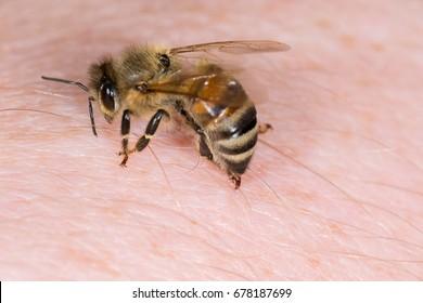 Attack of a honeybee (Apis mellifera) sting in human skin