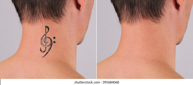 Attractive Man before and after laser tattoo removal treatment